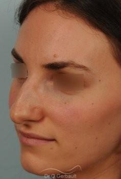 Bosse marquée et asymétrie de nez vue de quart avant