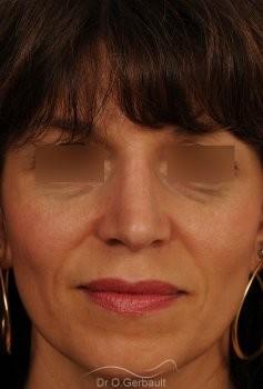 Bosse marquée et columelle tombante (procidente) vue de face apres