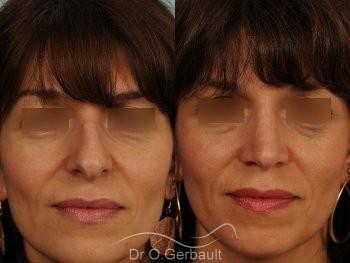 Bosse marquée et columelle tombante (procidente) vue de face avant-apres