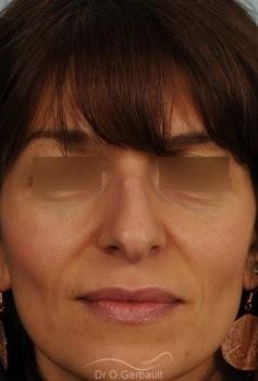 Bosse marquée et columelle tombante (procidente) vue de face avant
