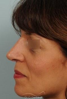 Bosse marquée et columelle tombante (procidente) vue de profil apres
