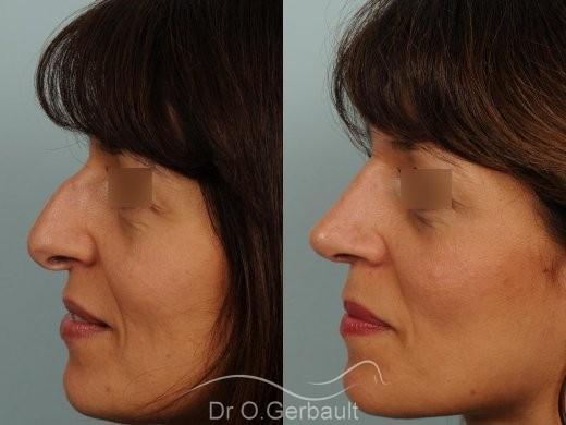 Bosse marquée et columelle tombante (procidente) vue de profil avant-apres