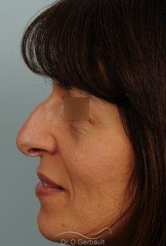 Bosse marquée et columelle tombante (procidente) vue de profil avant