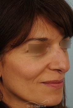 Bosse marquée et columelle tombante (procidente) vue de quart avant