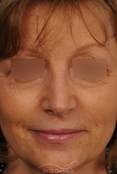 Bosse marquée sur un nez mature vue de face apres
