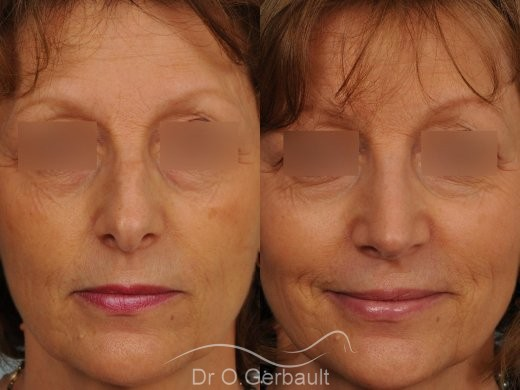 Bosse marquée sur un nez mature vue de face avant-apres