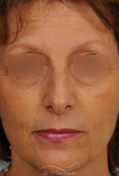 Bosse marquée sur un nez mature vue de face avant