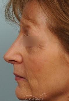 Bosse marquée sur un nez mature vue de profil apres