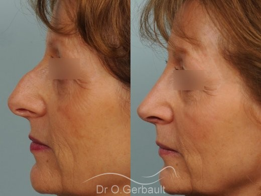 Bosse marquée sur un nez mature vue de profil avant-apres