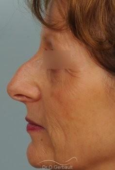Bosse marquée sur un nez mature vue de profil avant