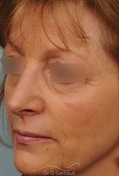 Bosse marquée sur un nez mature vue de quart apres