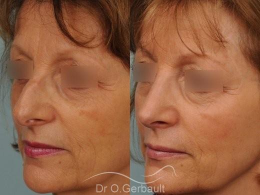Bosse marquée sur un nez mature vue de quart avant-apres