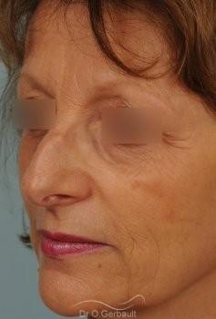 Bosse marquée sur un nez mature vue de quart avant