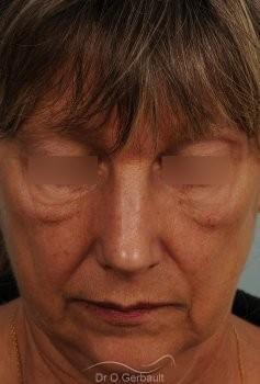 Bosse, pointe ronde sur nez large, mature vue de face apres