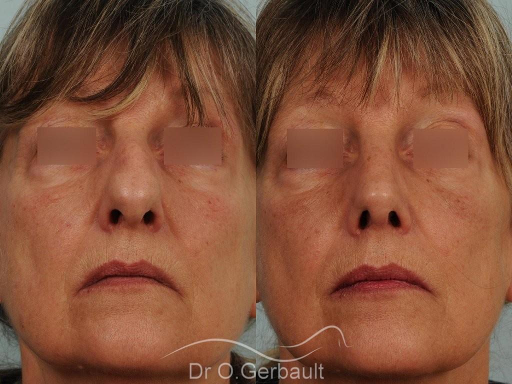 Bosse, pointe ronde sur nez large, mature vue de face avant-apres