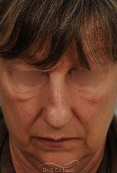 Bosse, pointe ronde sur nez large, mature vue de face avant