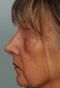 Bosse, pointe ronde sur nez large, mature vue de profil apres