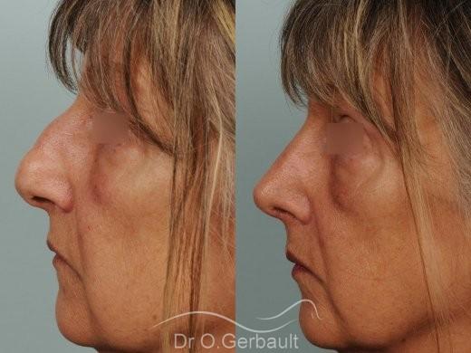 Bosse, pointe ronde sur nez large, mature vue de profil avant-apres