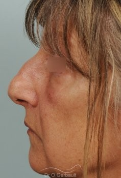 Bosse, pointe ronde sur nez large, mature vue de profil avant