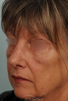Bosse, pointe ronde sur nez large, mature vue de quart apres