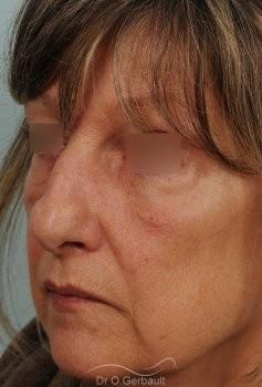 Bosse, pointe ronde sur nez large, mature vue de quart avant
