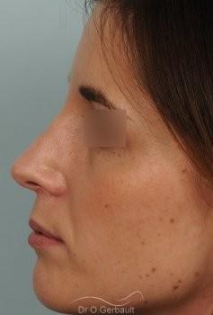 Bosse sur le nez et pointe tombante vue de face apres