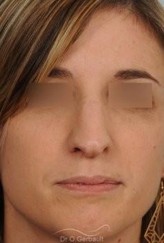 Bosse sur le nez et pointe tombante vue de face avant