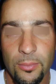Bosse sur le nez chez l'homme vue de face apres