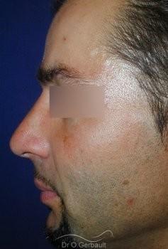Bosse sur le nez chez l'homme vue de profil apres