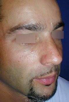 Bosse sur le nez chez l'homme vue de quart apres