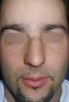 Bosse sur le nez chez l'homme vue de face avant