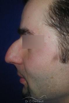 Bosse sur le nez chez l'homme vue de profil avant