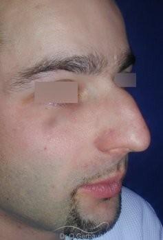 Bosse sur le nez chez l'homme vue de quart avant