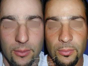 Bosse sur le nez chez l'homme vue de face duo
