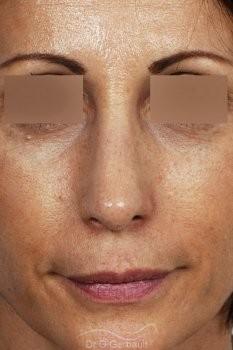Bosse sur le nez, rhinoplastie primaire vue de face apres