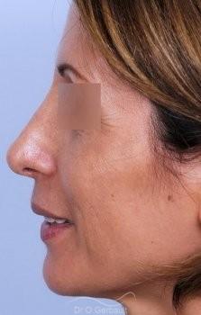 Bosse sur le nez, rhinoplastie primaire vue de profil apres