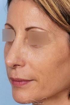 Bosse sur le nez, rhinoplastie primaire vue de quart apres