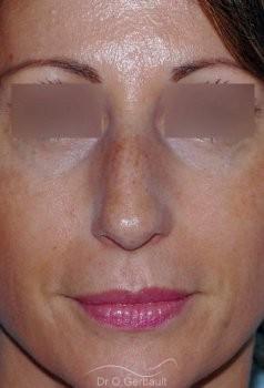 Bosse sur le nez, rhinoplastie primaire vue de face avant