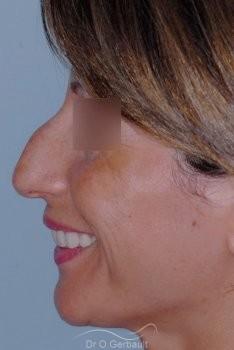 Bosse sur le nez, rhinoplastie primaire vue de profil avant