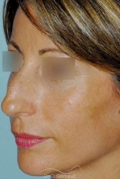 Bosse sur le nez, rhinoplastie primaire vue de quart avant