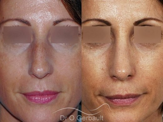 Bosse sur le nez, rhinoplastie primaire vue de face duo