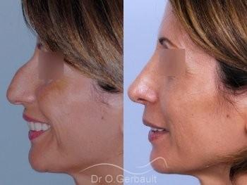 Bosse sur le nez, rhinoplastie primaire vue de profil duo