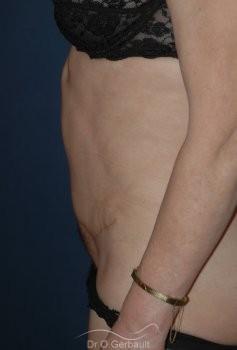 Plastie Abdominale vue de profil apres