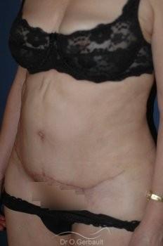 Plastie Abdominale vue de quart apres