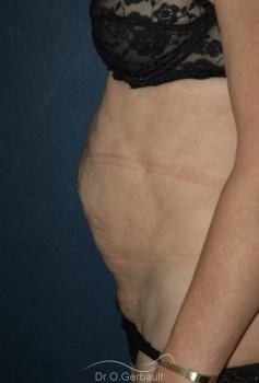 Plastie Abdominale vue de profil avant