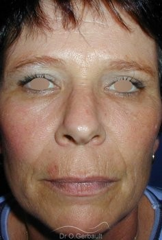 Chirurgie des paupières superieures vue de face apres