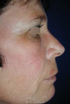 Chirurgie des paupières superieures vue de profil apres