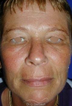 Chirurgie des paupières superieures vue de face avant