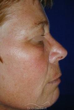 Chirurgie des paupières superieures vue de profil avant