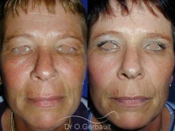 Chirurgie des paupières superieures vue de face duo
